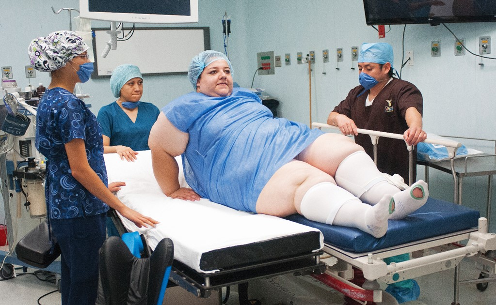 Weight-loss surgery: miracles don't exist