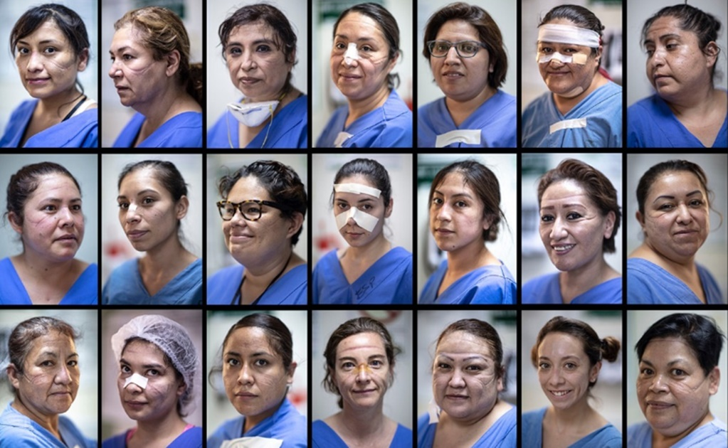 Photos show the bruised faces of Mexican female healthcare workers on the frontlines of coronavirus