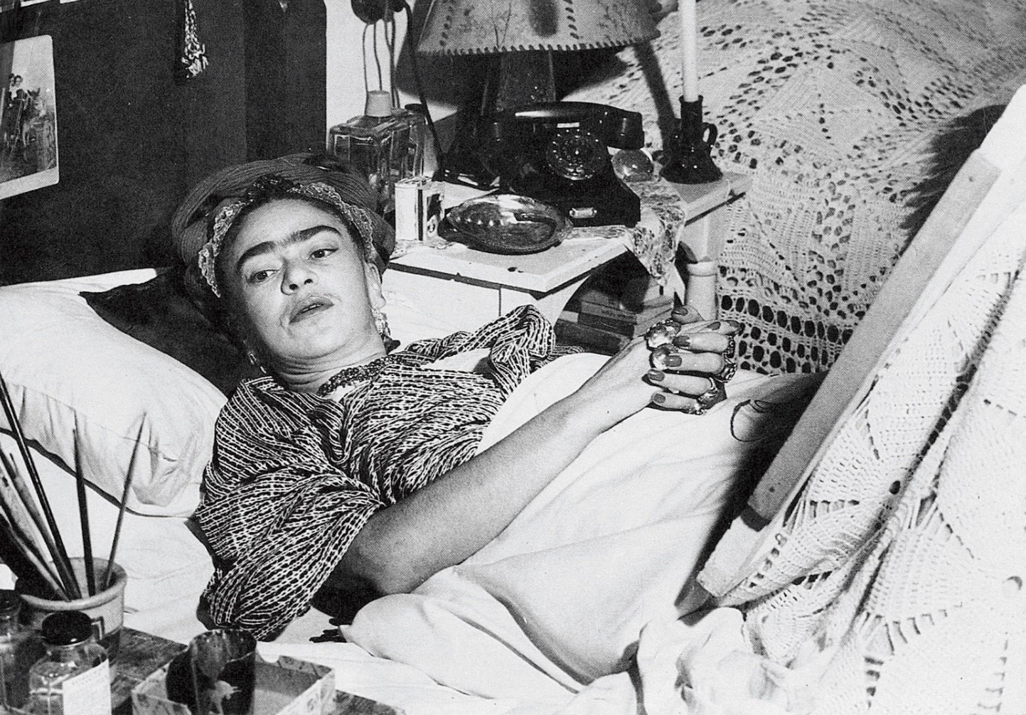 Frida Kahlo: The fatal accident that transformed her life and art