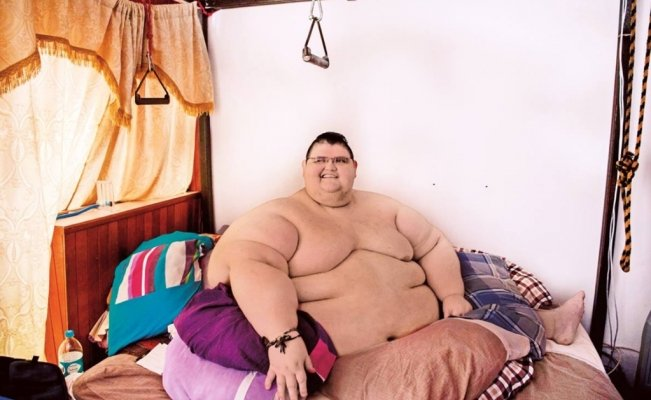World's heaviest man defeats COVID-19 in Mexico