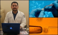 Mexican scientists develop stem cell bank from dental pieces