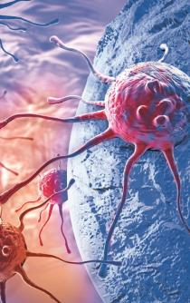 Liver cancer on the rise
